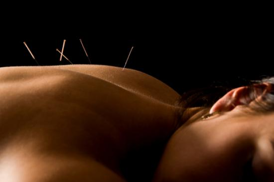 acupuncture back
